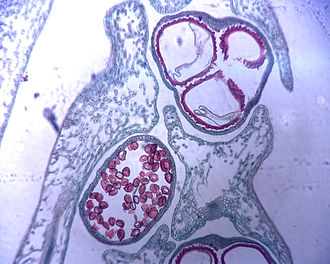 Microspore - Microscopic photo of spores (in red) of Selaginella. The large three spores at the top are megaspores whereas the numerous smaller red spores at the bottom are microspores.