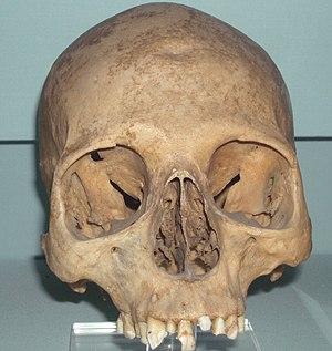 Asyut - Skull of Khety from Asyut, 1950 BCE.