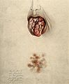 Syphilis; lesions on tongue; psoriatic lesion, 1865 Wellcome V0010157.jpg
