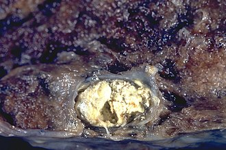Caseous necrosis - Image: Tuberculosis Sub pleural primary (Ghon) focus (6596011395)