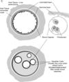 Vuitton et al - International consensus on terminology - parasite200043-fig2c.png