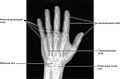 814 Radiograph of Hand.jpg