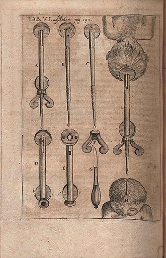 François Mauriceau - Illustration of Traité des maladies des femmes ... published in Acta Eruditorum, 1684