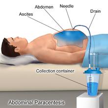 Paracentesis - Wikipedia