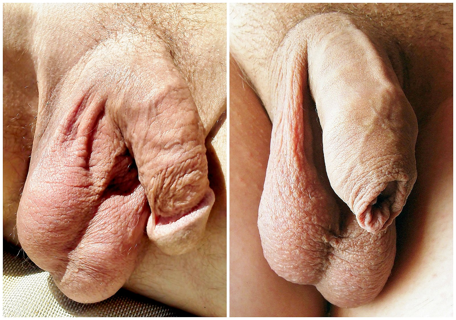 Penis adult ann nude having