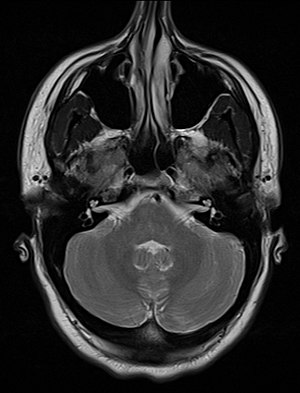 An MRI image showing a congenitally deviated nasal septum
