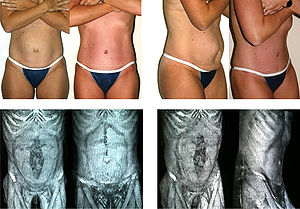 Abdominoplasty - Image: Dr. Placik Abdominoplasty