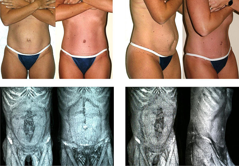 Cosmetic Surgery Before And After Pictures Why You Should Examine