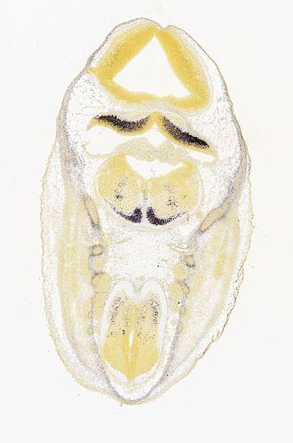 FOXP2 - Image: Foxp 2, ISH, E13.5 mouse, cerebellum hindbrain