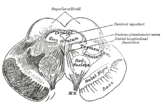 Ventral tegmental area - Transverse section of mid-brain at level of superior colliculi. (Tegmentum labeled at center right.)
