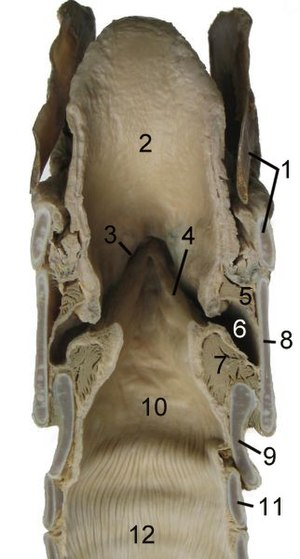 Vestibular fold - Cut through the larynx of a horse: