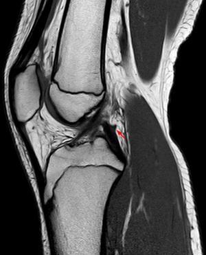 Posterior meniscofemoral ligament - Image: Ligamentum wrisberg sag