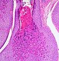 Molluscum Contagiosum 3.jpg