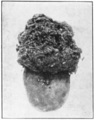 PSM V78 D480 Potato destroyed by the wart disease.png