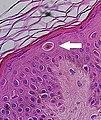 Pagetoid peripherally to a melanoma in situ (crop).jpg
