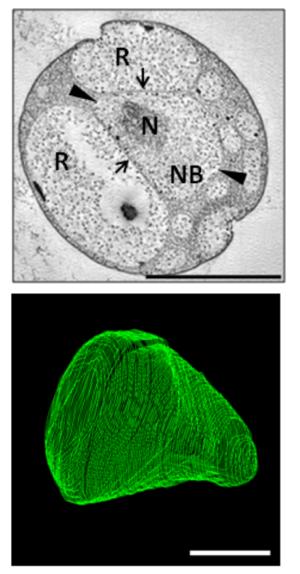 Gemmata obscuriglobus - Image: Sagulenko plosone 2014 gemmata obscuriglobus reconstruction fig 1A fig 1B