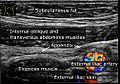 Ultrasonography of a normal appendix, annotated.jpg