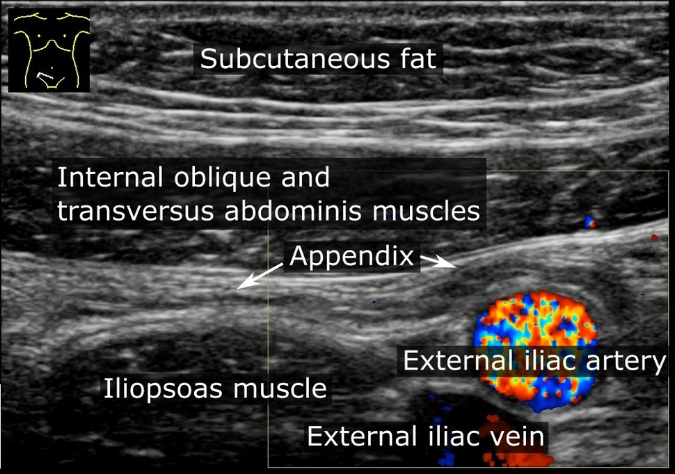 Ultrasonography of a normal appendix, annotated