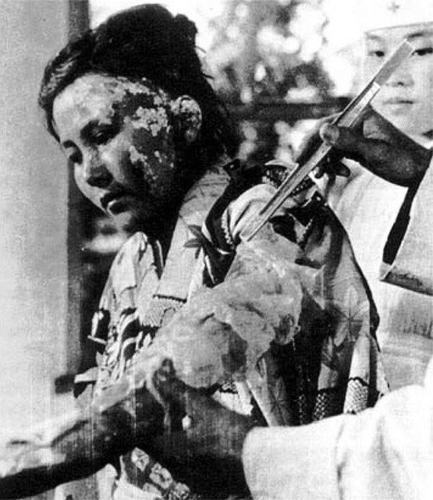 Victim of Atomic Bomb 003