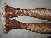 Vitiligine sulle gambe.