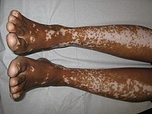 Česky: Splývající makulózní léze při vitiligu ...