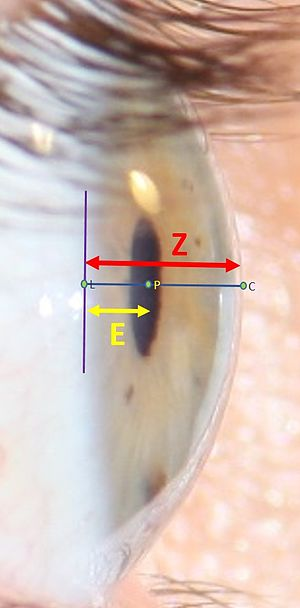 Anterior chamber of eyeball - Figure 1. Calculating EZ ratio.