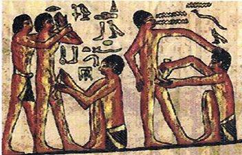Young Egyptian laborers treated by doctors after circumcision, as a part of a rite of passage to citizenship. - Ancient Egypt