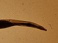 Enterobius vermicularis (YPM IZ 093318).jpeg