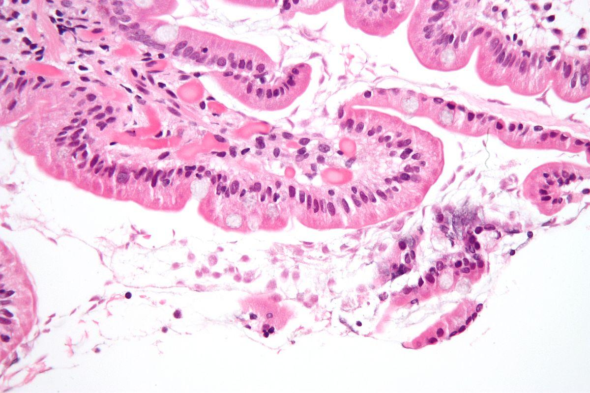 a giardia tünetei egy kutyában papillomas vírus