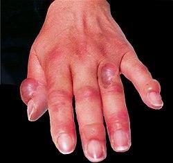 Hand frostbite.jpg