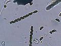 Hypoxylon fuscum asci, Gladde kogelzwam sporenzakjes (2).jpg