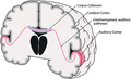 Interhemispheric auditory pathways fnhum-08-00055-g001.png
