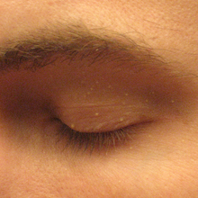 Close-up view of an adult eyelid on which there are numerous  small, elevated skin lesions filled with white material