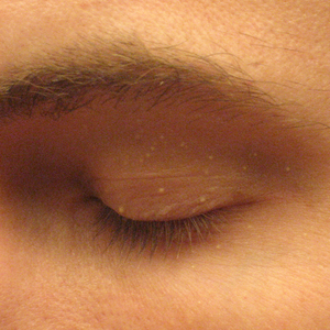 Milia on the eyelid of an adult male
