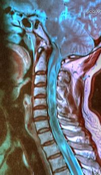 Syringomyelia associated with Chiari malformation