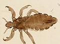 Pediculus humanus (YPM IZ 093561).jpeg