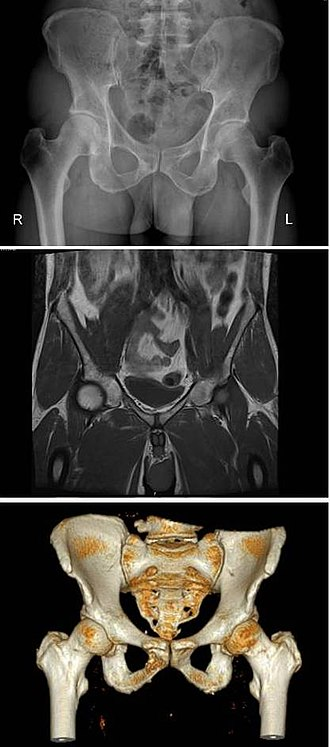 Pelvis - The same human pelvis, front imaged by x-ray (top), magnetic resonance imaging (middle), and 3-dimensional computed tomography (bottom).