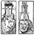 Peter Treveris - engraving of Trepanation for Handywarke of surgeri 1525.png