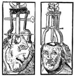 Peter Treveris - engraving of Trepanation for Handywarke of surgeri 1525