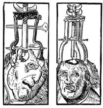 Peter Treveris - engraving of Trepanation for Handywarke of surgeri 1525.png