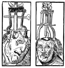 http://upload.wikimedia.org/wikipedia/commons/thumb/b/b7/Peter_Treveris_-_engraving_of_Trepanation_for_Handywarke_of_surgeri_1525.png/220px-Peter_Treveris_-_engraving_of_Trepanation_for_Handywarke_of_surgeri_1525.png