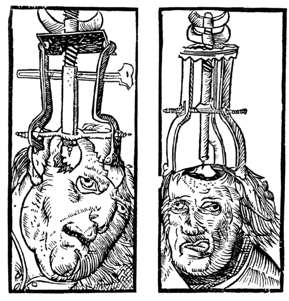 Image:Peter Treveris - engraving of Trepanation for Handywarke of surgeri 1525.png