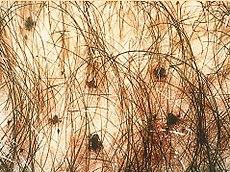 SOA-Pediculosis-pubis.jpg