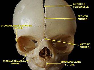 Frontal suture - Image: Slide 1MIA