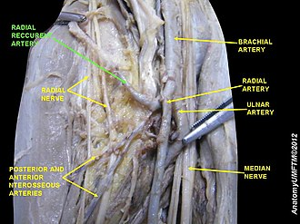 Radial recurrent artery - Image: Slide 1MMMM