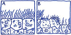 Tracheal cytotoxin - Illustration showing the effects of TCT on human ciliated epithelial cells.  Figure A illustrates normal human epithelial tissue.  Figure B illustrates normal human epithelial tissue after incubation with TCT.  Notice the damaged and extruded ciliated epithelial cells in Figure B.