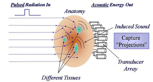 thermoacoustic imaging