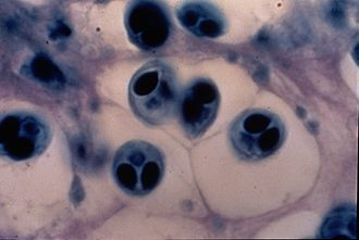 Myxobolus cerebralis - The normally uniform trout cartilage is scarred with lesions in which M. cerebralis spores develop, weakening and deforming the connective tissues.