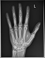 X-Ray of RFID Implant.jpg