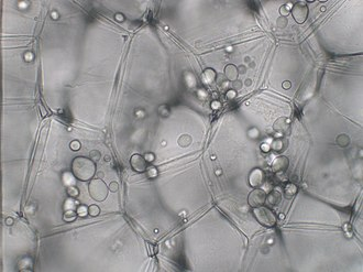 Plastid - Leucoplasts in plant cells.